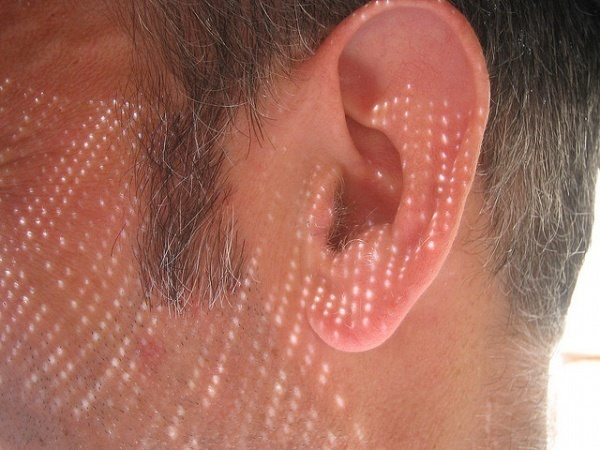 Ear / Menage a Moi via Flickr CC License by